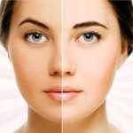 How to get rid of Dull Skin – Tips from Dr Sirisha