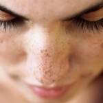 7 Tips To Get Rid Of Acne Pimple Marks At Home
