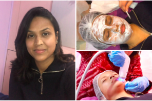 My Experience Radio Frequency Micro Needling ft Sculpt Clinic